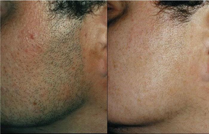 epilation-laser-visage